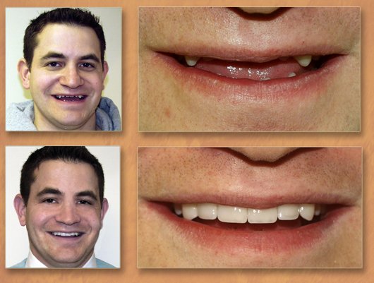 how to get rid of a crooked smile