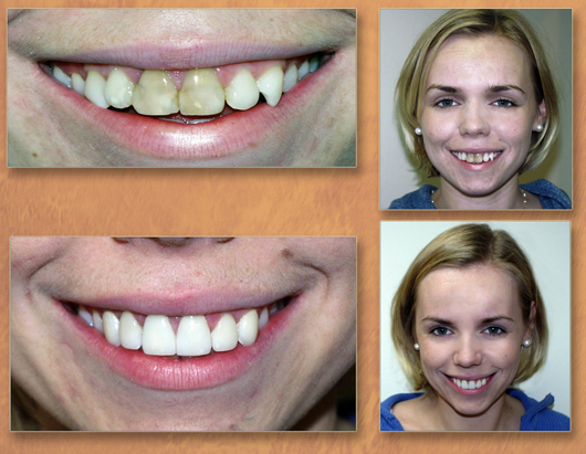 Crown Lengthening Surgery